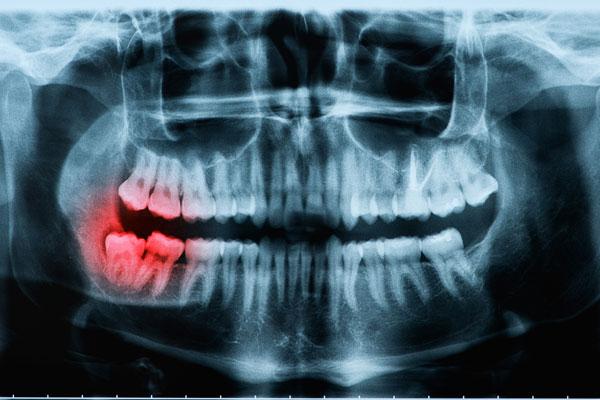 Röntgenaufnahme von einem Kiefer