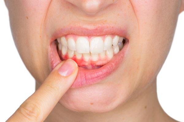 Frau mit gerötetem Zahnfleisch