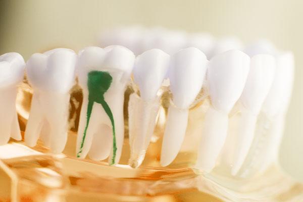 Zahn mit grüner Wurzelfüllung