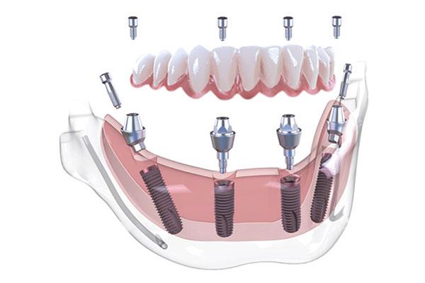 Illustration von Gebiss mit Implantaten